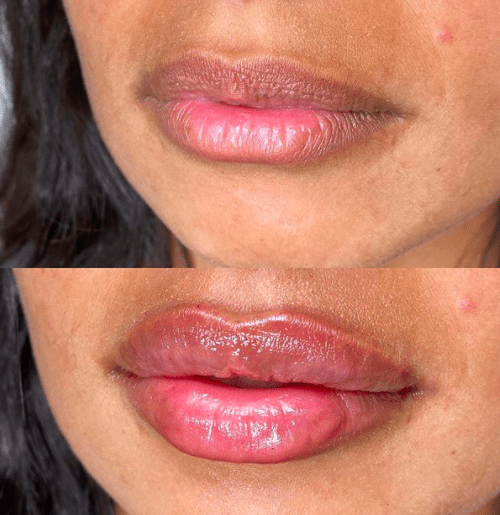 7 Lip Filler Before and After Shots You Have to See