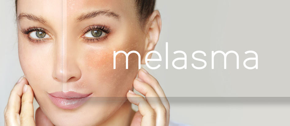 What is Melasma & How Do You Treat It?